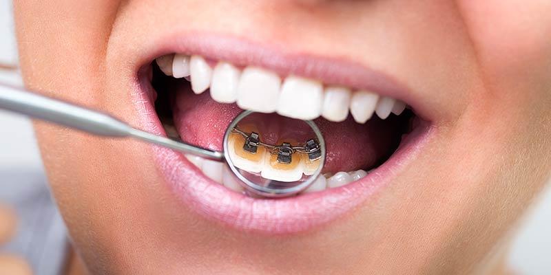 Ortodonzia Invisibile - in cosa consiste l'ortodonzia linguale - Antonio Manni Dentista - Racale Lecce